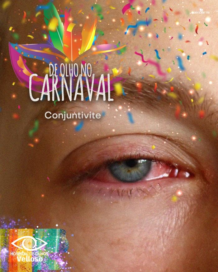 De olho no carnaval - Conjuntivite